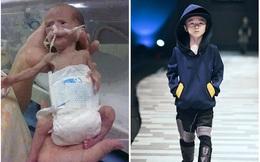 Chào đời chỉ hơn 1kg, hành trình trở thành mẫu nhí của cậu bé 6 tuổi tạo nên điều kì diệu