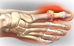 """Lời khuyên bác sĩ: Chữa khỏi bệnh gout không phải thuốc, mà do bí quyết """"ĂN ít, ỘP nhiều"""""""