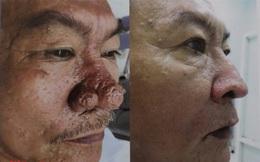 Bác sĩ công bố loạt ảnh hiếm về đàn ông Việt mắc bệnh mũi sư tử