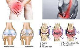 Bước tiến mới cho bệnh đau nhức xương khớp