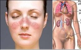 Lupus ban đỏ nguy hiểm như thế nào?
