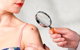 Hầu hết nốt ruồi hoàn toàn vô hại, nhưng một số là khối u ác tính nếu có 5 dấu hiệu sau