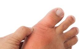 Nếu bàn chân có 6 dấu hiệu sau: Hãy cẩn thận sức khỏe của bạn có vấn đề