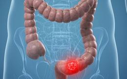 4 nguyên tắc giảm nguy cơ ung thư ruột già ai cũng làm được