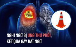 Nghi ngờ bị ung thư phổi, bác sĩ phát hiện điều bất ngờ về nguyên nhân gây ra khối u