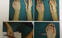 Hai bàn tay đứt rời hoàn toàn phục hồi kỳ diệu sau ghép nối