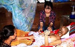 Người đàn ông mắc bệnh lạ bị ăn hết khuôn mặt ở Tiền Giang vẫn có thể được chữa khỏi
