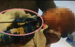 Mải đùa nghịch mà không có người lớn trông coi, bé trai 2 tuổi bị thanh cốt thép đâm xuyên hộp sọ