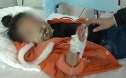 Bé gái 4 tuổi bị biến dạng khuôn mặt vì điện thoại của cha nổ khi đang sạc