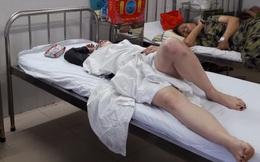 Du khách Nga lao vào bùng binh: Chồng tử vong, vợ nguy kịch