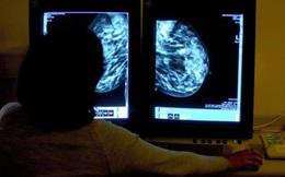 Chương trình máy tính cho phép phát hiện ung thư sớm nhất có thể, từ khi triệu chứng chưa xuất hiện, không cần phẫu thuật