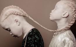 Vẻ đẹp lạ của cặp chị em song sinh bị bạch tạng gây xôn xao ngành công nghiệp thời trang Brazil