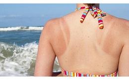 Mùa hè có nóng hơn 40 độ cũng không sợ cháy nắng với những phương pháp đơn giản này