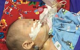 SOS: Hãy dừng ngay cho trẻ uống thuốc cam không rõ nguồn gốc