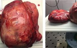 Cắt bỏ khối u khủng chiếm trọn ổ bụng cùng nửa đại tràng phải