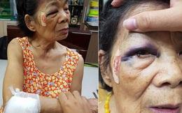 Hà Nội: Bà cụ 80 tuổi bị ô tô đâm bầm tím mắt và tay, tài xế vờ xuống xem rồi viện lý do để bỏ chạy