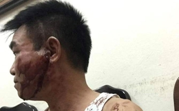 Hà Nội: Vợ chồng thanh tra hỗn chiến với anh trai