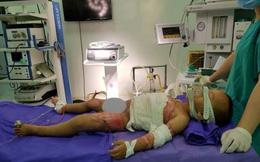 Bé trai 2 tuổi bị bỏng nước sôi thương tâm