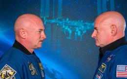 Hai anh em sinh đôi gặp lại nhau sau 1 năm sống và làm việc ở vũ trụ – và kết quả sẽ làm bạn cảm thấy bất ngờ