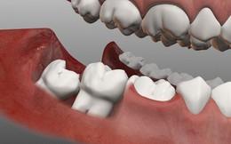 Chuyên gia giải đáp: Vì sao răng khôn thi thoảng trồi lên như 1 vị thần?