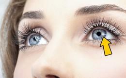 [Trắc nghiệm] Nhìn mắt đoán bệnh: Kết quả khiến bạn bất ngờ