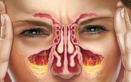 8 cách làm giảm nghẹt mũi tự nhiên mùa này ai cũng nên biết