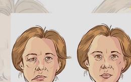 Những dấu hiệu nhận biết bệnh đột quỵ