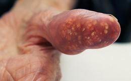 Trắc nghiệm: Bạn có nguy cơ mắc căn bệnh gây đau đớn khủng khiếp này không?