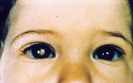Người phụ nữ thấy sự phản chiếu kỳ lạ trong mắt con của người bạn, cô thúc giục bạn cho con đi khám và kết quả đáng sợ