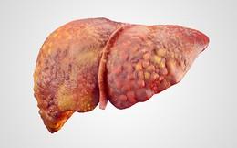 Hiệp hội Ung thư Mỹ: 5 cách phòng ngừa ung thư gan ai cũng nên làm ngay
