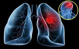"""Dấu hiệu """"lặng lẽ"""" của bệnh ung thư phổi không ai được xem thường"""