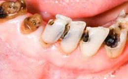 6 bệnh răng miệng người Việt hay mắc nhất: Đây là nguyên nhân của nhiều bệnh hiểm