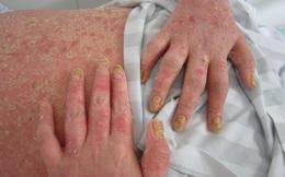 """Người bệnh ước """"thà bị ung thư còn hơn"""": Chân dung căn bệnh bị nhầm với giang mai, HIV..."""