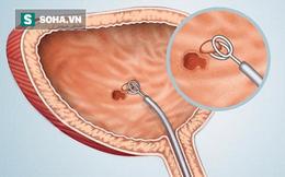 Bác sĩ Bệnh viện Đại học Y hướng dẫn bài tập khi đi tiểu giúp phòng ung thư bàng quang