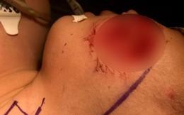 Bác sĩ BV Nhi đồng thốt lên 'kinh hoàng' vì quá nhiều bệnh nhi bị chó cắn
