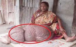 Chân biến dạng nặng gần 60 kg khiến người phụ nữ không thể cử động suốt 18 năm