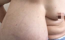 """Người phụ nữ mang """"núi đôi"""" chênh nhau gần 9 kg"""