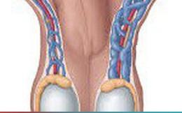 Giãn tĩnh mạch thừng tinh ở nam giới có nguy hiểm?