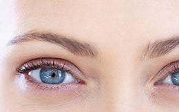 Đôi mắt nói gì về sức khỏe của bạn?