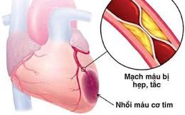 Chữa đúng cách, bệnh nhân thiếu máu cơ tim vẫn có thể sống khỏe mạnh