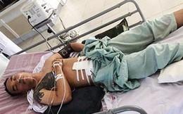 Hai nghi can bắn 2 người bị trọng thương ở Nghệ An đã ra đầu thú