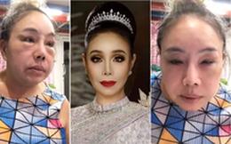 """Nhan sắc hiện tại của nữ đại gia Thái Lan """"đổi chồng như thay áo"""" sau cuộc phẫu thuật """"trở về tuổi 30"""""""