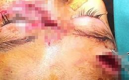 Thương tâm bé gái hơn 2 tuổi bị chó cắn nát mặt, nguy cơ sẹo sâu ở mặt