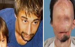 Bị điện giật mất cả khuôn mặt, con gái hốt hoảng không nhận ra cha nhưng 10 năm sau ai cũng bất ngờ khi gặp lại người đàn ông ấy