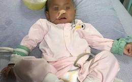Bé gái 15 tháng tuổi bị bục dạ dày vì ăn ngô: 6 nhóm người này không nên ăn ngô