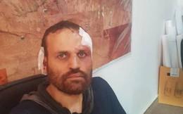 """Kích nổ """"áo bom"""" tự sát nhưng bất thành, thủ lĩnh khủng bố khét tiếng của Al-Qaeda bị bắt sống"""