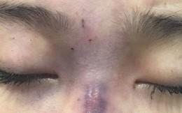 Vợ mù mắt vì để cho chồng không bằng cấp tiêm filler vào mũi