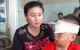 Thanh Hóa: Bé trai 6 tuổi bị chó cắn rách vùng mặt khi đang chơi ngoài ngõ