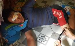 """Người chạy xe ba gác trong vụ tai nạn làm 6 người chết ở Bình Phước: """"Tôi văng vào lề đường, máu chảy đẫm mắt mũi"""""""