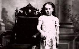 Cuộc sống địa ngục của Mary Ellen Wilson, nạn nhân đầu tiên từng được ghi nhận của nạn bạo hành trẻ em đã khiến luật pháp Mỹ phải thay đổi